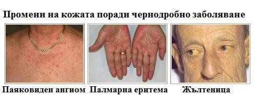 Промени на кожата поради чернодробно заболяване