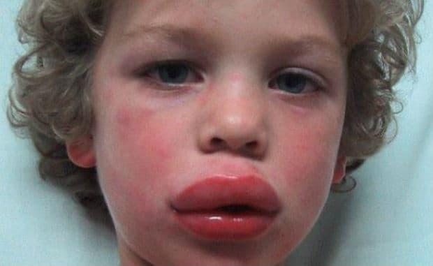Кожни симптоми при анафилаксия