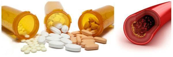 Контрол на холестерола с лекарства: статини