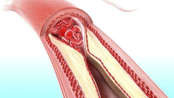 Холестеролни плаки в кръвоносен съд