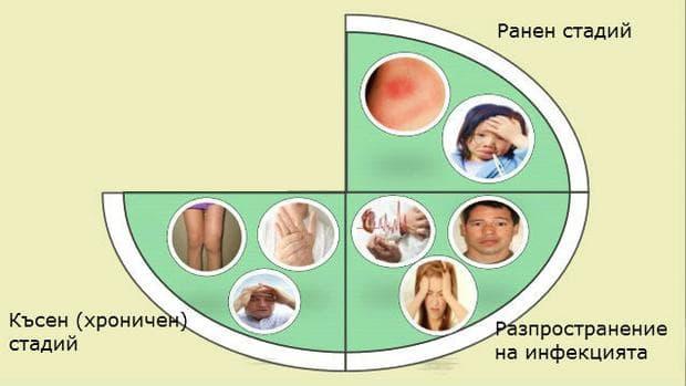 Симптоми на лаймска болест