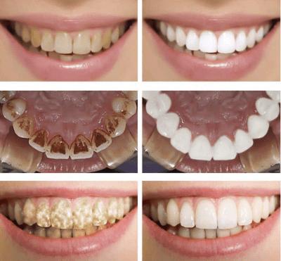 Петна по зъбите