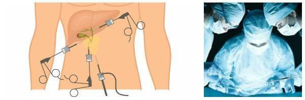 Лапароскопска холецистектомия, традиционна холецистектомия (отворена операция)