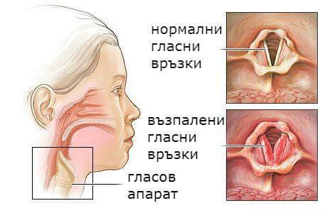 нормални и възпалени гласни връзки
