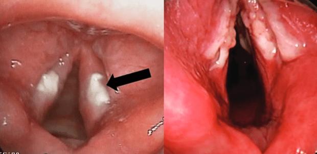 Гъбичен ларингит