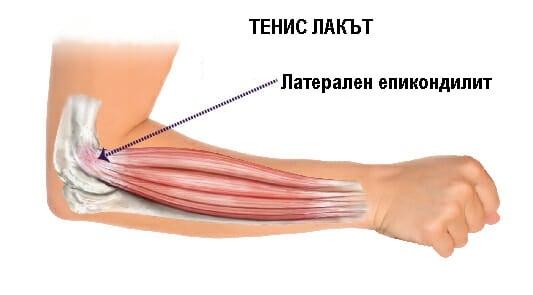 Латерален епикондилит