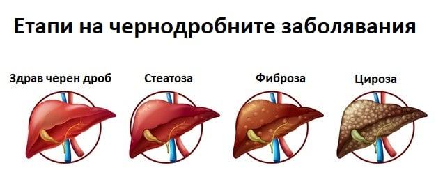 Етапи при чернодробните заболявания