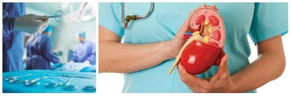 Лечение на бъбречна недостатъчност чрез бъбречна трансплантация (трансплантация на бъбрек)
