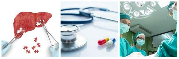 Лечение на чернодробен карцином: мерки, насочени към отстраняване на тумора