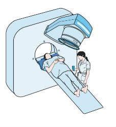 Лечение на лимфом - лъчетерапия