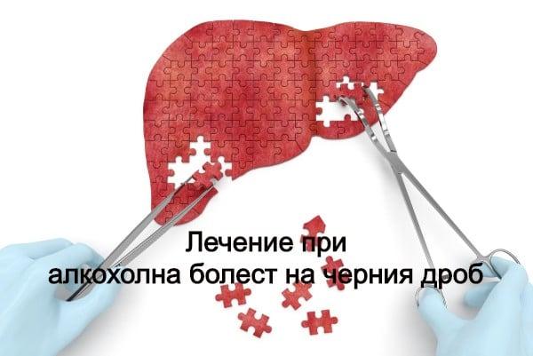 Лечение при алкохолна болест на черния дроб