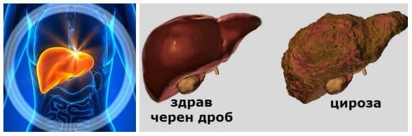 Лечение при цироза на черния дроб: установяване на причините