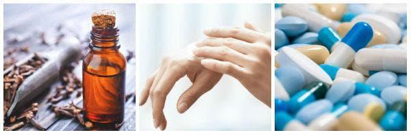 Лечение при краста: антихистамини, антибиотици, каламинов лосион, масло от чаено дърво