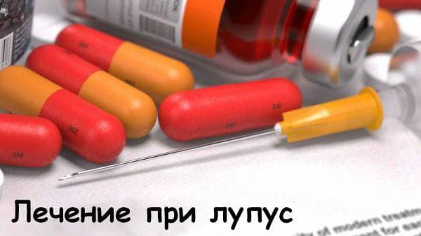 Лечение при лупус с нестероидни противовъзпалителни средства
