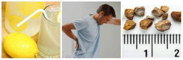 Лечение при нефролитиаза с билки и средства от народната медицина