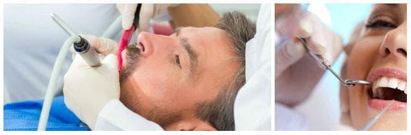Лечение при пародонтит: антибиотици, антисептици, почистване на зъбната плака
