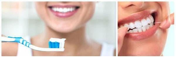 Лечение при пародонтит: подобряване на хигиената
