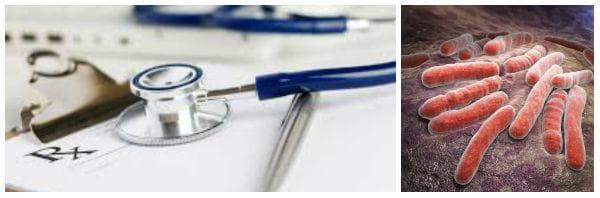 Лечение при туберкулоза - основни принципи