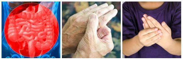 Лечение със сулфасалазин на ревматоиден артрит, улцерозен колит, юношески артрит