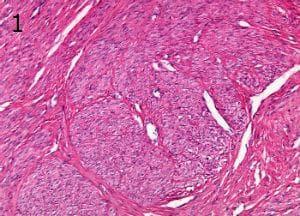 микроскопско изследване на лейомиом