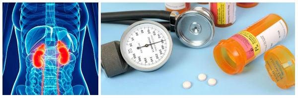 Лекарства, използвани за предоперативна подготовка при феохромоцитом