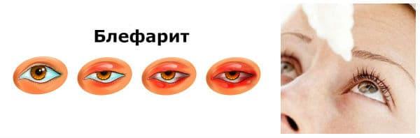 Лекарства за лечение при блефарит