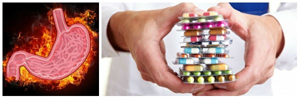 Лекарства за симптоматично лечение при гастрит: антиациди, антисекреторни и други