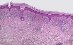 Хистопатология на lichen aureus
