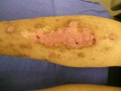 Lichen planus pemphigoides