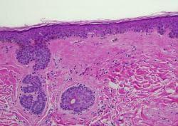Хистопатология на lichen sclerosus et atrophicus