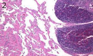 микроскопско изследване на лимфангиом