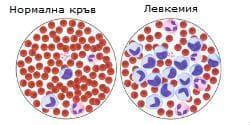 Лимфоидна левкемия - промени в кръвта