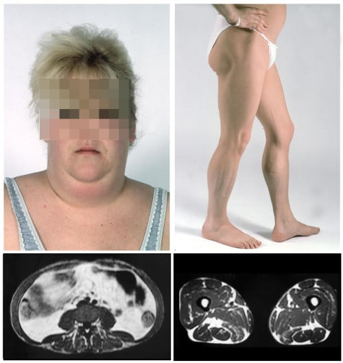 липодистрофия, некласифицирана другаде