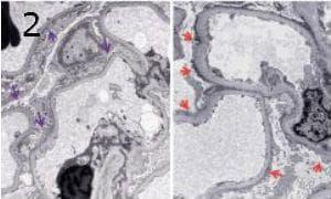 микроскопско изследване на липоидна нефроза