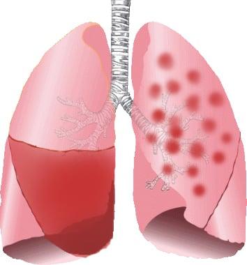 Лобарна пневмония