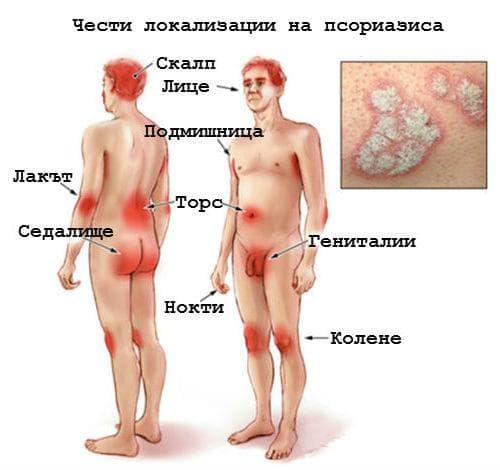 Локализация на псориазиса
