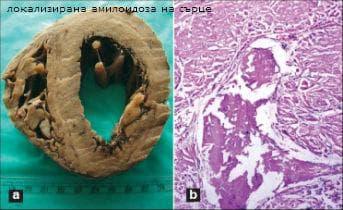локализирана амилоидоза