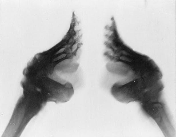 Лотосови крака
