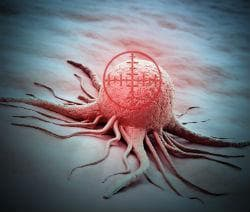 Лъчетерапия - приложение