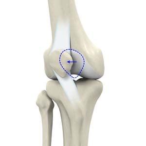 Изкълчване на колянното капаче