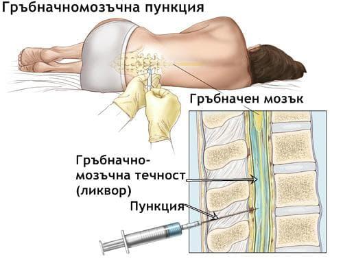 Спинална пункция