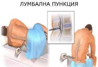 Лумбална пункция