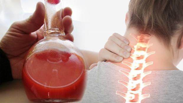Лют пипер срещу цервикална спондилоза