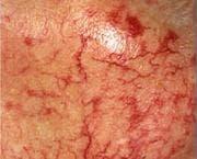 macula haemorrhagica