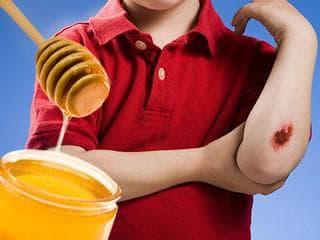 Мед при рани
