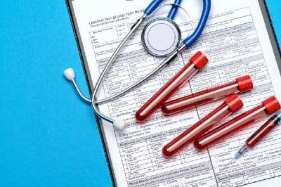 Изследване на лутеинизиращ хормон - показания