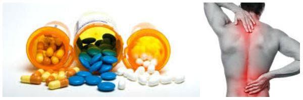 Медикаментозно лечение при дискова херния: противовъзпалителни средства, кортикостероиди, аналгетици