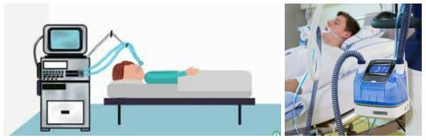 Механична вентилация (командно дишане): особености