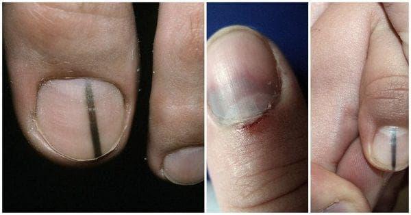 Меланом на ноктите