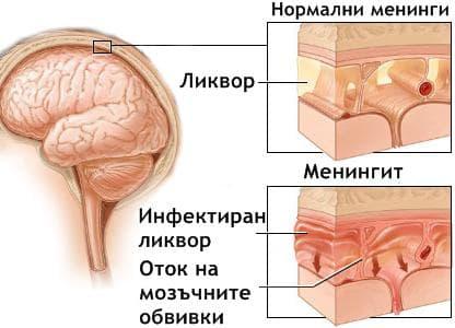 Възпаление на мозъчните обвивки